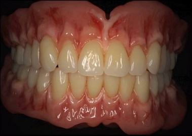 A close up photo of a set of dentures